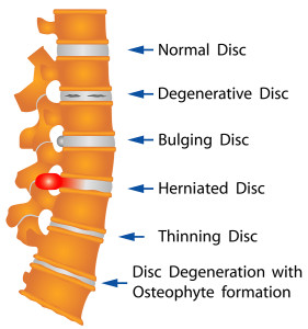 bigstock-Spine-Conditions-50330282